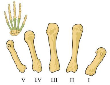 Пястные кости руки