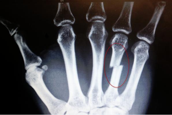 Травма четвертой кости