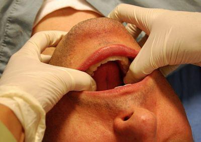 лечение травмы челюсти
