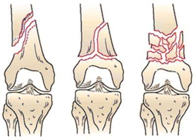 Внесуставные переломы дистального (нижнего) отдела