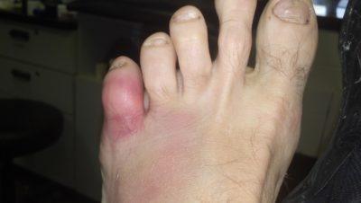 покраснение мизинца на ноге