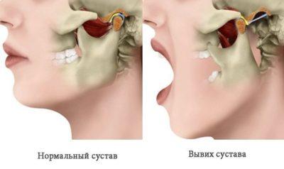 схема травмы челюсти