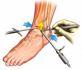 схема хирургического лечения