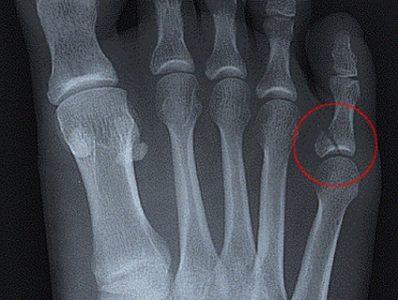 рентген мизинца на ноге