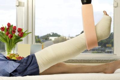 подвешенная нога в гипсе
