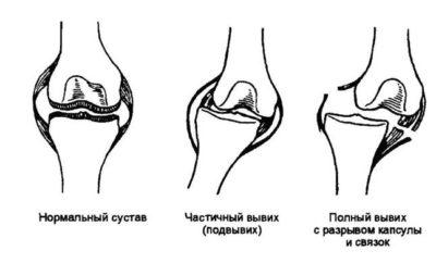 Схематическое изображение вывихнутого сустава