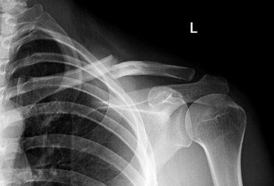 рентгеновский снимок ключицы