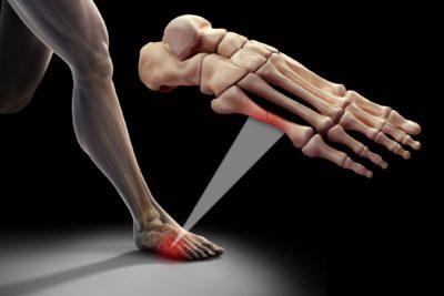 пятая плюсневая кость стопы