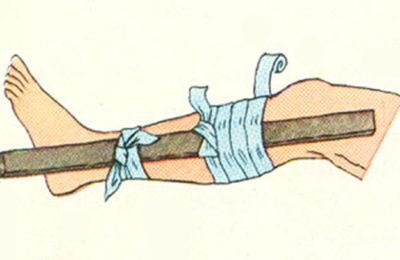 шина на травмированную ногу