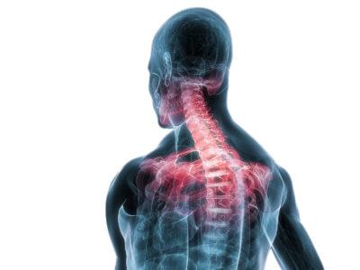 травма грудного отдела позвоночника