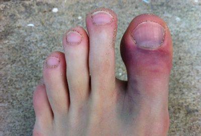 Сломан большой палец ноги