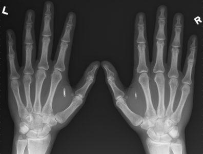 рентген пальцев рук