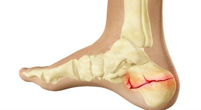схематическое изображение травмы пятки