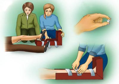 первая помощь при переломе голени