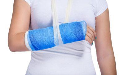 сломанная рука в гипсе