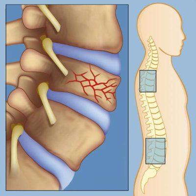 схематическое изображение перелома позвоночника