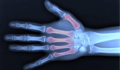 рентген ладони