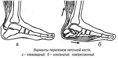 Виды травмы пяточной кости