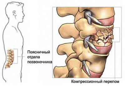 перелом позвоночника