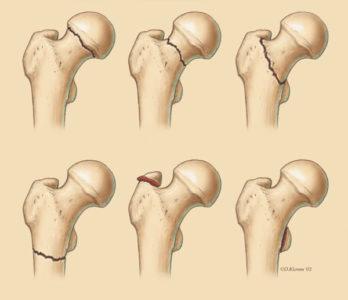 разновидности переломов шейки бедра