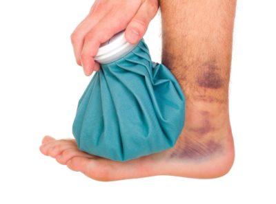 холодный компресс для поврежденной ноги