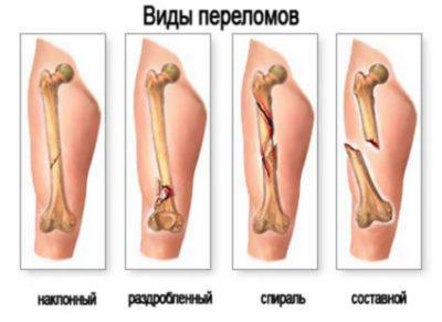 виды переломов бедренной кости