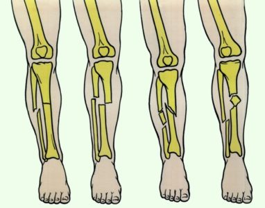 берцовая кость (виды переломов)