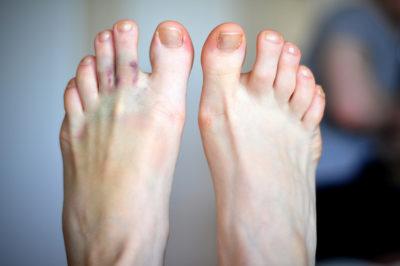 Отек пальцев на ногах