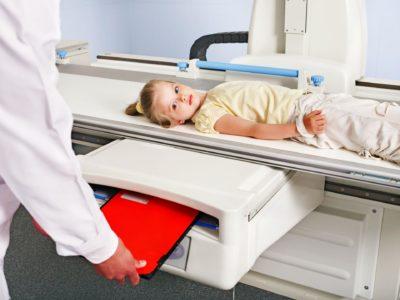 рентген ребенка на наличие осложнений