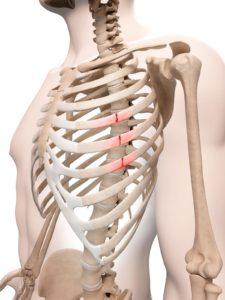 скелет с травмами ребер