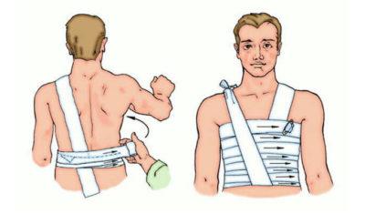 наложение повязки на ребра