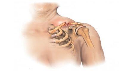 схематический рисунок травмы ключицы