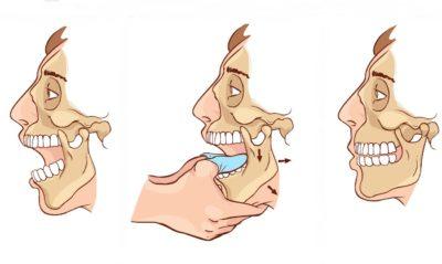 способ вправления челюсти