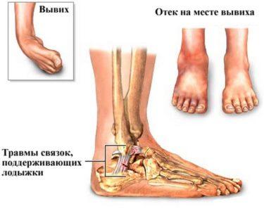 схематический рисунок травмы щиколотки