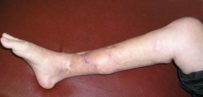 осложнения после остеомиелита костей
