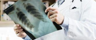 врач осматривает рентген грудной клетки