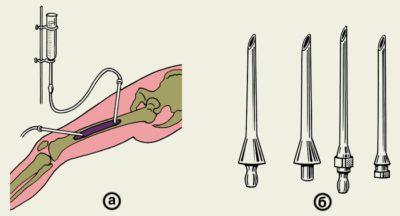 Промывания полости кости