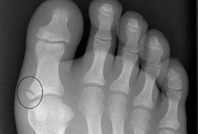 рентген при переломе