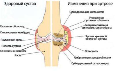 Изображение - Лечение плечевого сустава после травмы 1374931906_1-400x249
