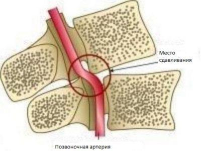место сдавливания артерии