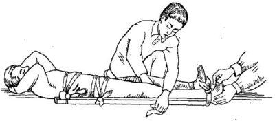 транспортировка при травме ног