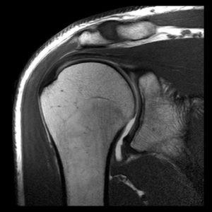 рентген плеча