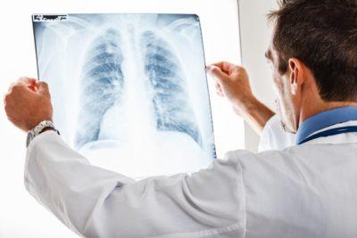 травма ребер на рентгене