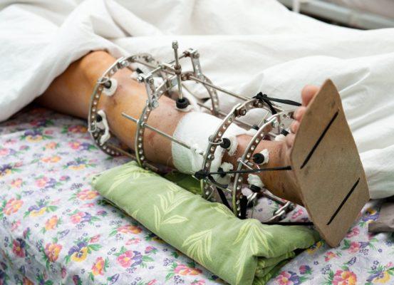 нога после перелома