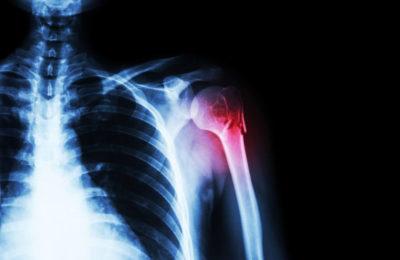перелом плеча на рентгене
