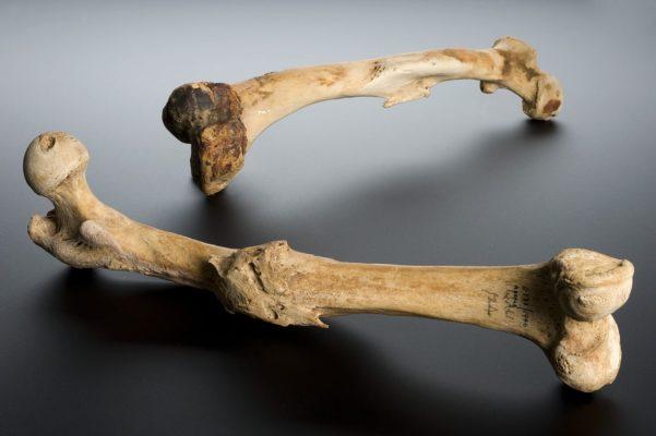 поврежденные кости