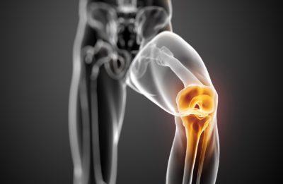 скелет колена