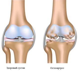 остеопороз колена