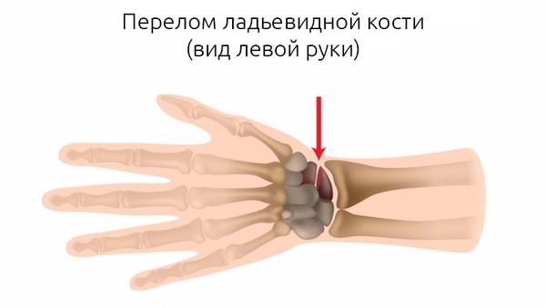 ладьевидная кость