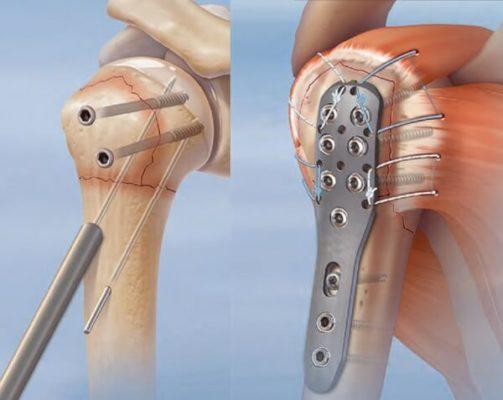 пластина для лечения перелома